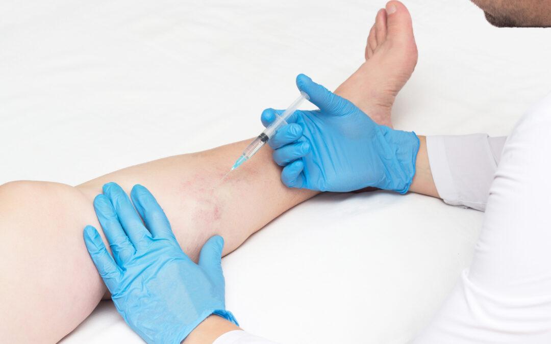 A Varicose Vein Clinic Near California Describes The Varicose Vein Treatment Process