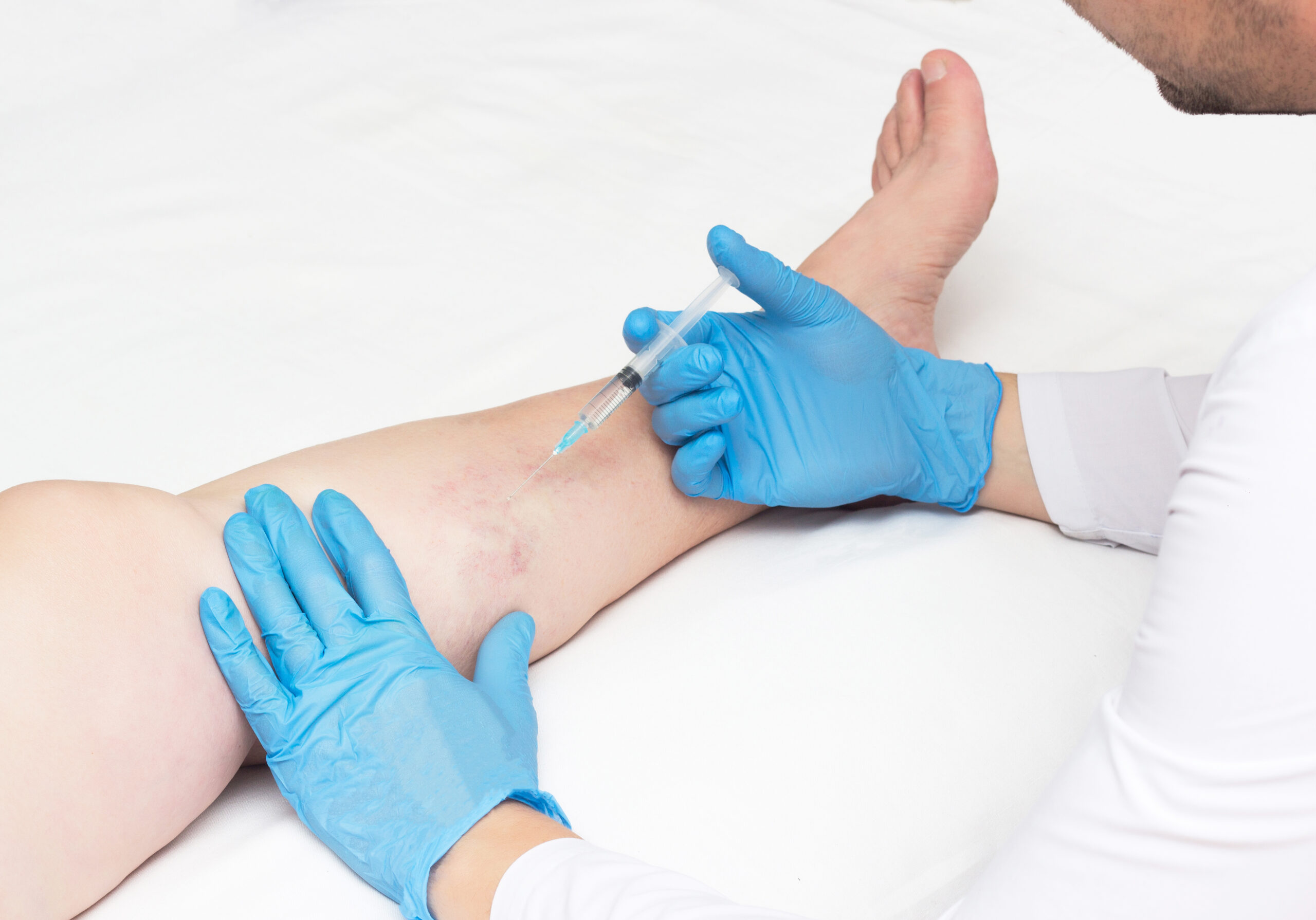 """If you are seeking vein treatment in California, you are probably wondering *what are the qualities of a good vein clinic in California?"""" In this article, we discuss how to choose the best vein clinic in California"""