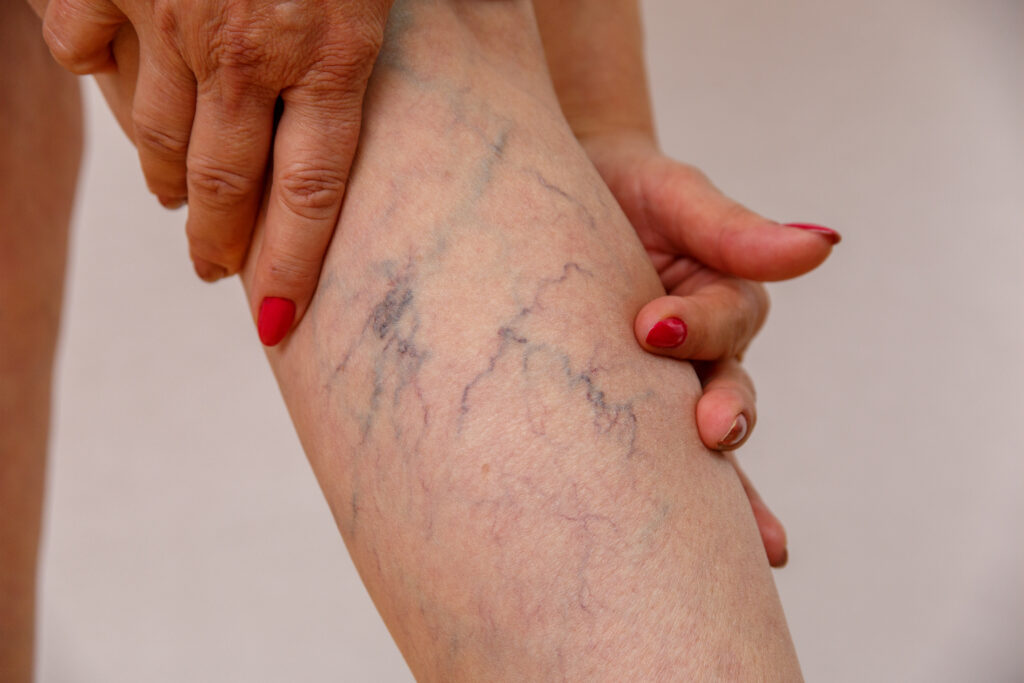 """If you have spider veins and varicose veins, you may have plenty of questions to ask, including """"How can i find a spider vein clinic near me in SD?"""" and """"How can I find a good vein doctor?"""". In this article, medical group experts answer these questions and more."""