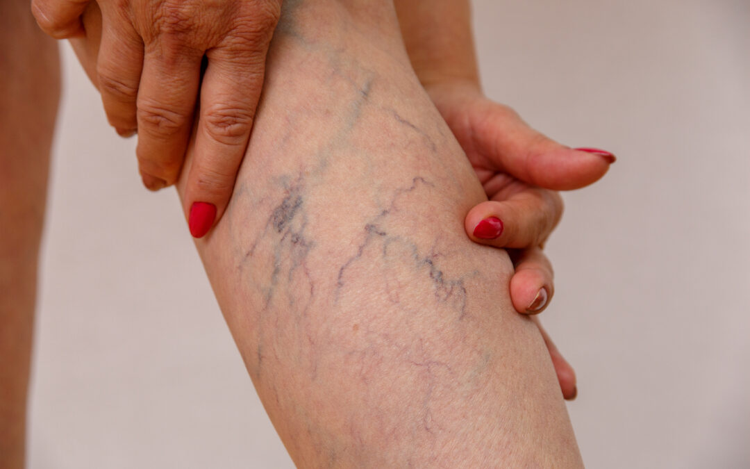 When Should I Consult a Vein Center in CA? An Expert Medical Group Weigh In