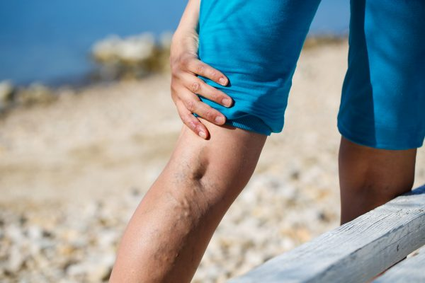 If you have spider veins or varicose veins, here are some ways to promote blood circulation and give you temporary relief. We talk through some of these remedies and where you can seek professional medical treatment at a vein center near me California.