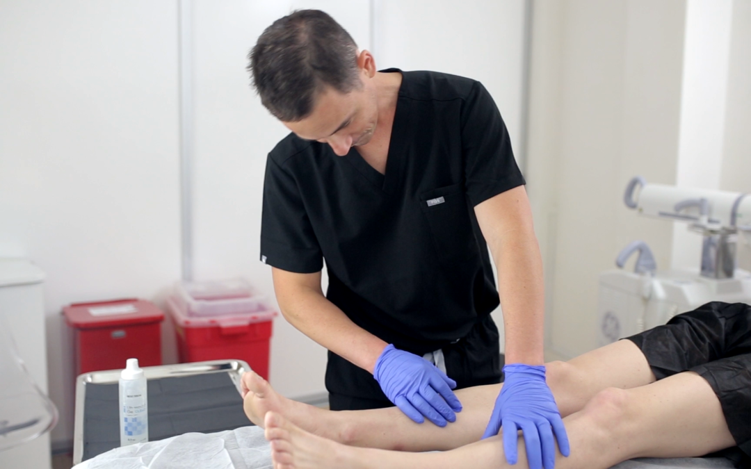 You must consult a reputable vein doctor if you're suffering from varicose veins. This article answers FAQs about varicose vein treatment near CA.