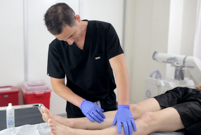 What Can I Expect from Varicose Vein Treatment Near San Diego?